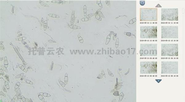 远程拍照式孢子捕捉仪显微拍摄图片